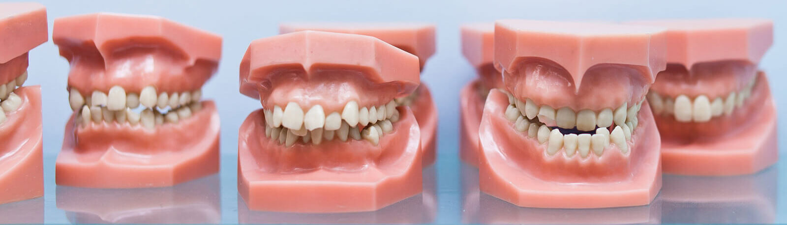 Row of educational jaw models with bad bite malocclusion in dentist office