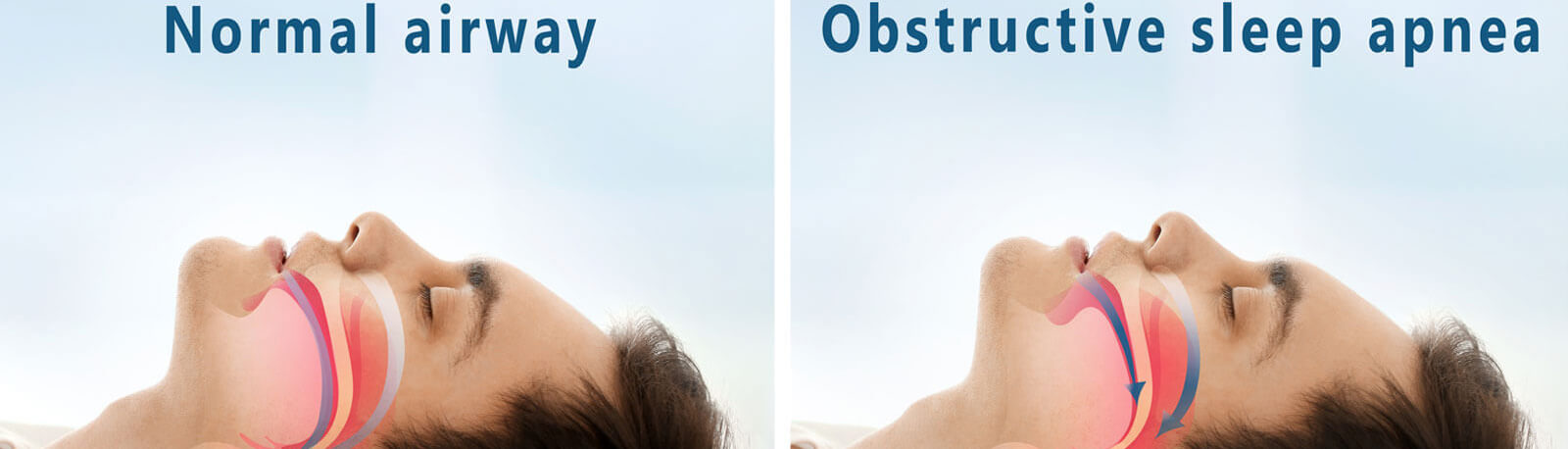 Snore problem concept - Illustration of normal airway and obstructive sleep apnea