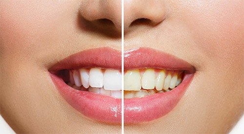 Stained Teeth - Before After