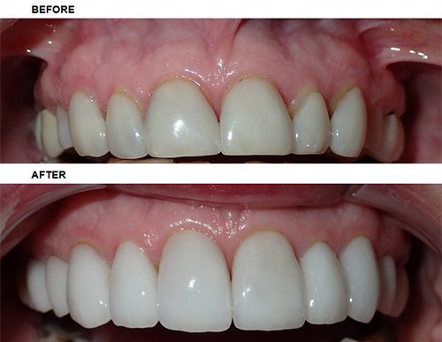 Veneers - Before After