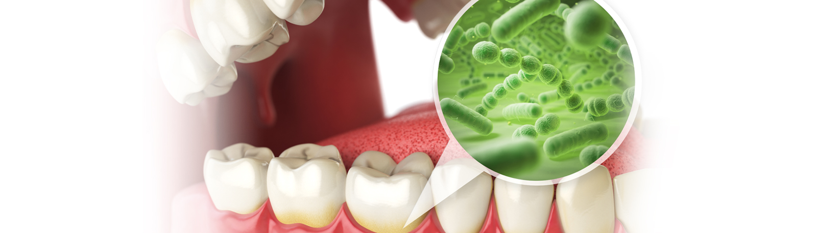 Osseous Periodontal Therapy - Dunedin FL